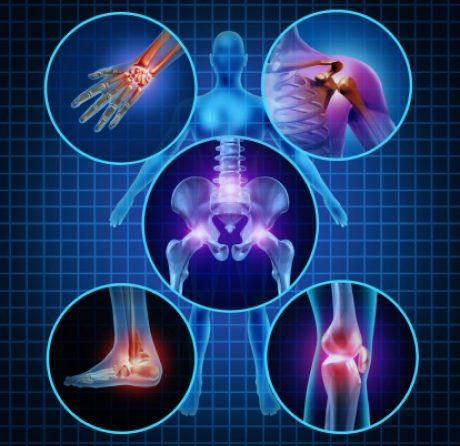 Bone and Joint Problems Associated with Diabetes