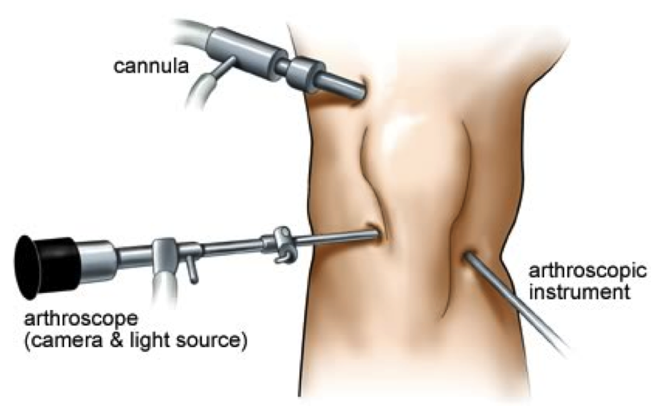 Arthroscopy Surgery Monmouth County NJ